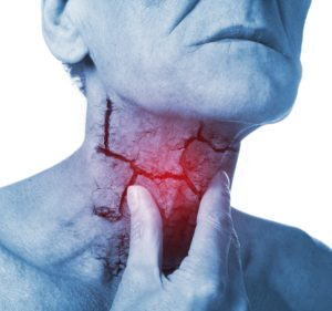 Thyroid Myths: Symptoms of Thyroid Problems (Part 1 )