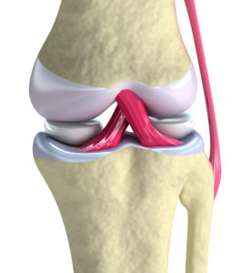 Arthritis Knee Pain Relief: Myths Around Drugs & Surgery (Part 1/2)
